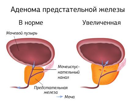 Лечение аденомы простаты и её причины
